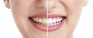 Teeth Whitening can offer a dramatic improvement for patients who have significant tooth staining or discolouration