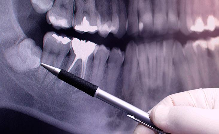 Wisdom teeth removal Vancouver - Dentist showing impacted wisdom tooth on dental x-ray image. Wisdom teeth removal kitsilano