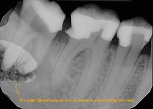 Root Canal Vancouver: The highlighted tooth shows an abscess surrounding the root. A root canal is necessary to prevent more additional infection.