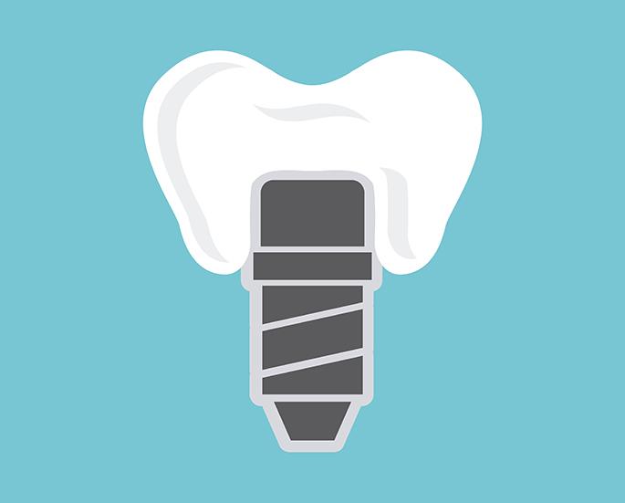 dental implants design | Vancouver dentist