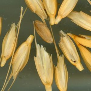 Preventative Dental Care for Celiacs - Eliminate Wheat