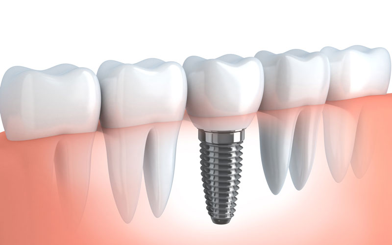 Kitsilano dentist - kitsilano dental services - Dental Implant