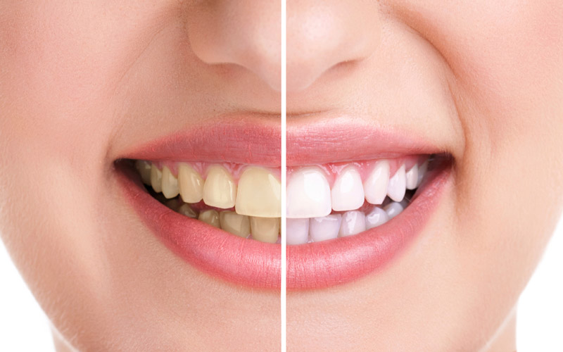 Kitsilano dentist - kitsilano dental services - Teeth whitening before and after